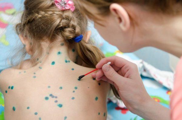 Bệnh thủy đậu ở trẻ em được điều trị như thế nào?