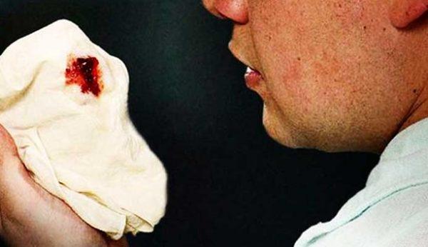 Bệnh lao phổi có nguy hiểm không? Biến chứng của bệnh lao phổi