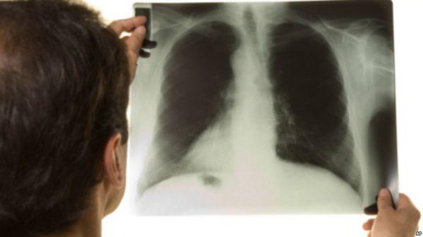 Bệnh lao phổi nặng giai đoạn cuối và những điều cần biết