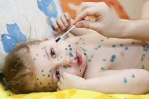 Cách chữa phỏng dạ cho trẻ
