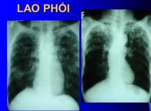 Bệnh lao phổi là gì?